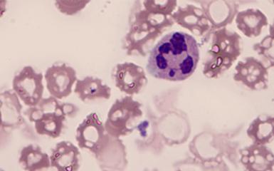 血液中的白细胞观察的重要工具—广州明美自主研发的显微镜相机MD50