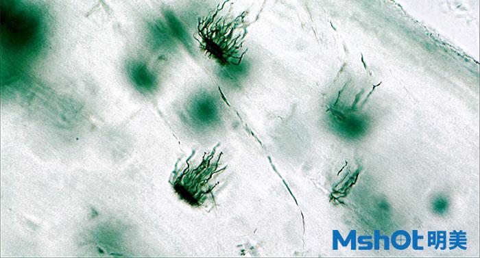 生物显微镜下的软骨陷窝