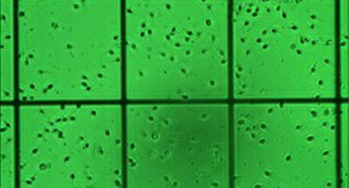 数码成像系统在精子检测中的应用