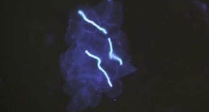 荧光显微镜应用于真菌检测