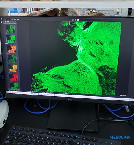 明美荧光显微镜MF43-N用于荧光染色细 菌的观察