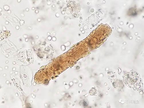 显微镜下的微观世界——尿液检测